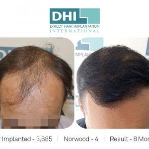 DHI - Hair Transplant Success Story 5
