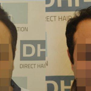 DHI - Hair Transplant Success Story 6