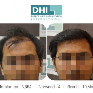 DHI - Hair Transplant Success Story 7