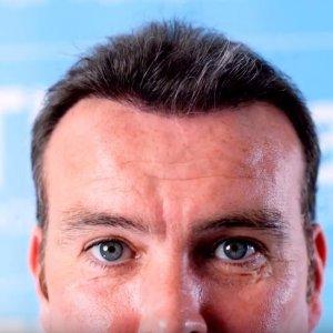 Ben-Thornley-Hair Transplant-Dr-Arshad.JPG