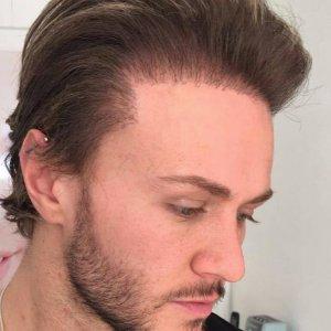 Kyle Christie bad hair transplant.jpg