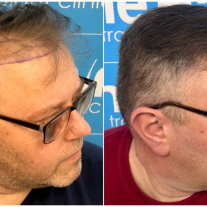 before-after-hairdr-dr-arshad-right.png