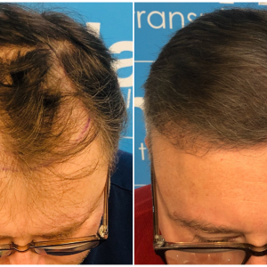 before-after-hairdr-dr-arshad-top.png