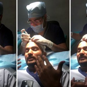 Patient Feedback- Patient Shares His Feedback Regarding Hair Transplant With DHI Technique