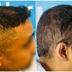 before-after-fut-hairdr-dr-arshad-right.png