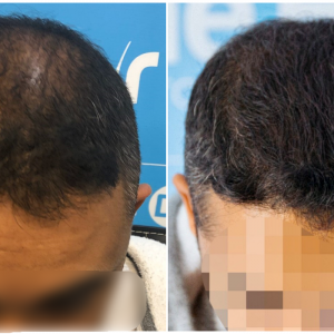 before-after-fut-hairdr-dr-arshad-top.png