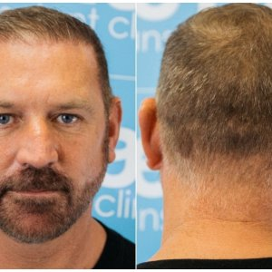 after-hairline-donor-before-dr-arshad-fue-hair-dr.jpg