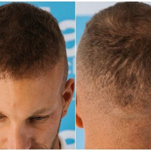 3500-FUE-Growth-Donor-Healing-snap-Dr-Arshad-Hair-Dr..jpg