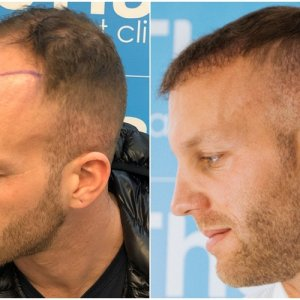 before-after-fue-hair-dr-dr-arshad-left.jpg