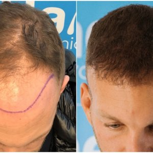 before-after-fue-hair-dr-dr-arshad-top.jpg