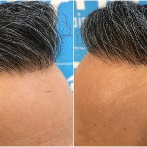 2148-fue-hair-dr-hairline.jpg