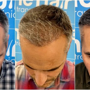 before-6-months-11-months-2148-fue-hair-dr-face.jpg