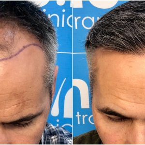 before-11-months-2148-fue-hair-dr-face.jpg