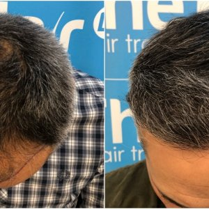 before-11-months-2148-fue-hair-dr-top.jpg