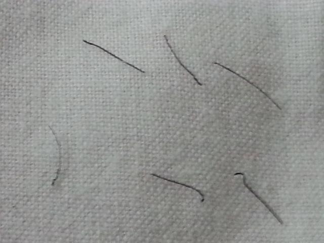 http://www.hairlossexperiences.com/gallery/3408/3408_171457_210000000.jpg Plucked Hair Follicle Bulb