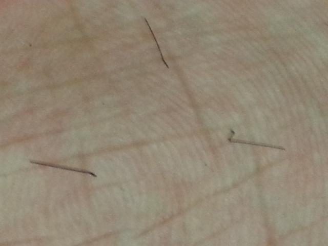 http://www.hairlossexperiences.com/gallery/3408/3408_171457_210000002.jpg Plucked Hair Follicle Bulb