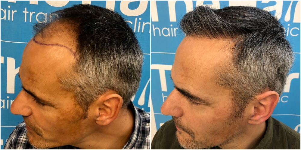 before-11-months-2148-fue-hair-dr-left.jpg
