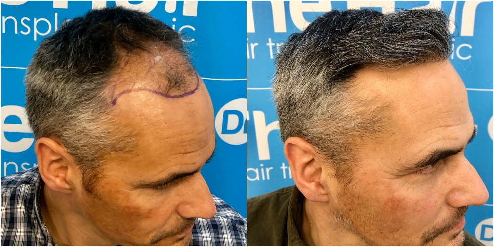 before-11-months-2148-fue-hair-dr-right.jpg