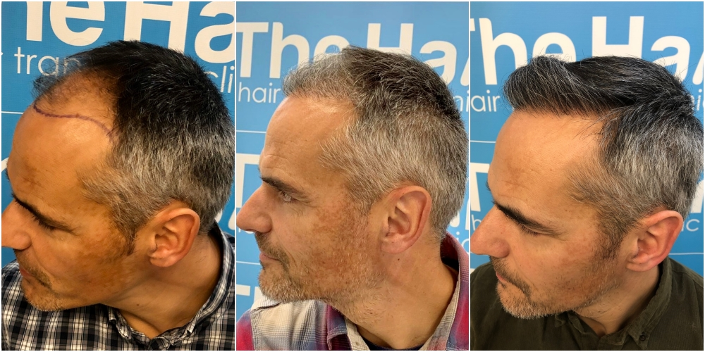 before-6-months-11-months-2148-fue-hair-dr-left.jpg