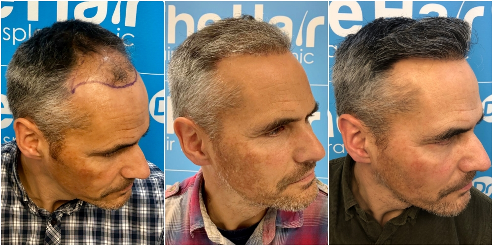 before-6-months-11-months-2148-fue-hair-dr-right.jpg