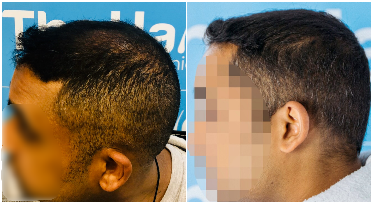 before-after-fut-hairdr-dr-arshad-left.png