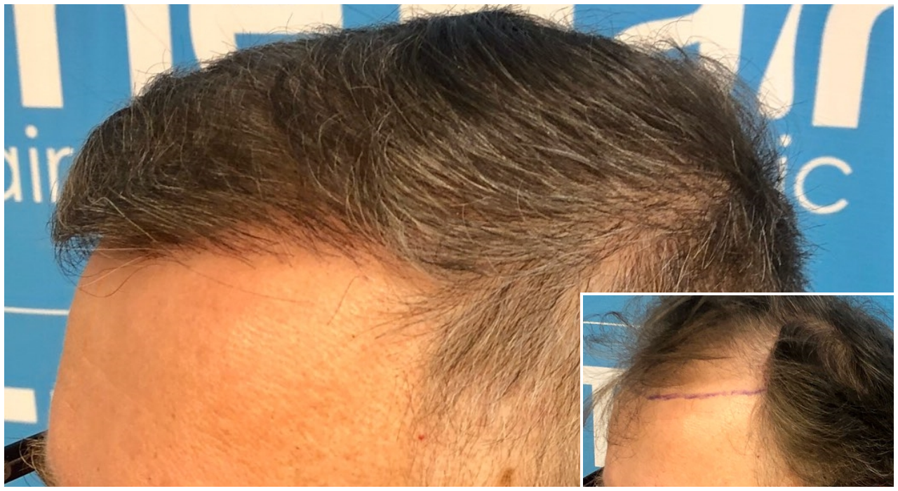 before-after-hairdr-dr-arshad-hairline-comp.png