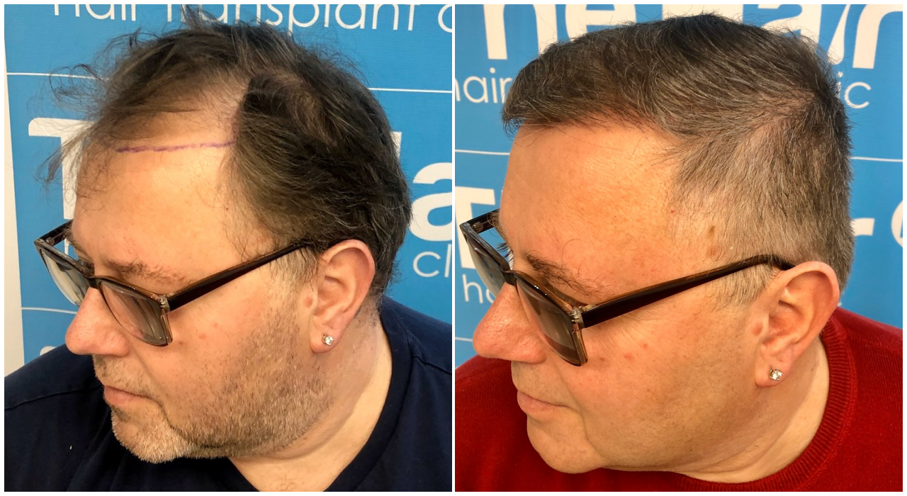 before-after-hairdr-dr-arshad-left.png
