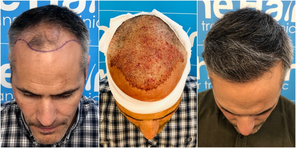 before-placement-11-months-2148-fue-hair-dr-top.jpg