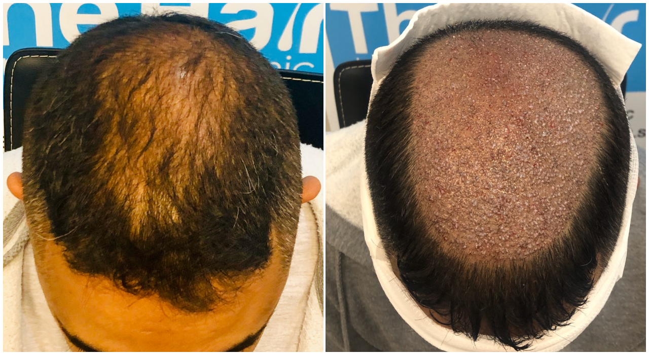 before-placement-fut-hairdr-dr-arshad-top.png