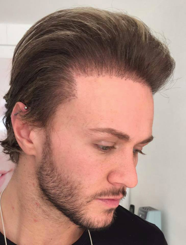 Kyle Christie bad hair transplant.jpg
